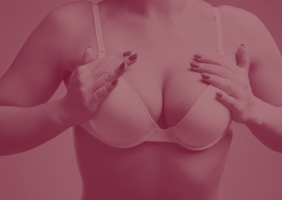 Mamoplastia Redutora